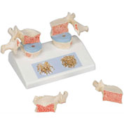 3B® Anatomical Model - Osteoporosis Model