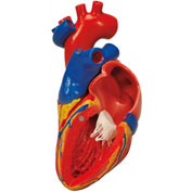 3B® Anatomical Model - Heart with Bypass, 2-Part