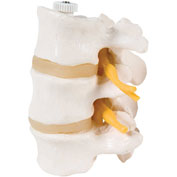 3B® Anatomical Model - 3 Lumbar Vertebrae, Flexibly Mounted