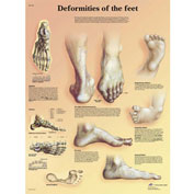 3B® Anatomical Chart - Deformities of The Feet, Laminated