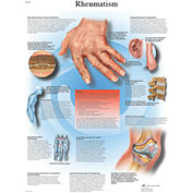 3B® Anatomical Chart - Rheumatic Diseases, Laminated